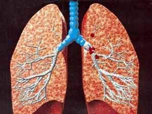 صورة توضيحية لسرطان الرئة